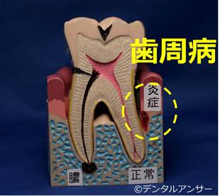 歯のグラつく原因(歯周病)