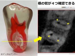 保険外の歯の治療、歯科用CTで見た歯の根の断面像(下の奥歯)
