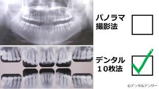 歯周病を専門的に治療する時のレントゲン
