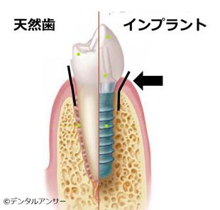 天然の歯とインプラントの形の違い