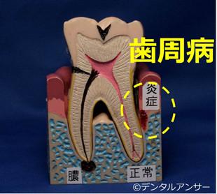 歯の痛みと歯周病の関係のイメージ