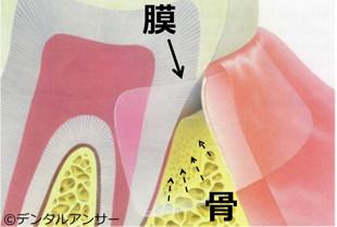 再生治療(歯周病治療)GTR法
