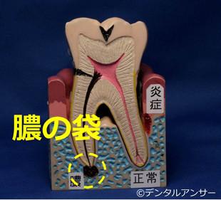 歯がグラつく、奥歯を噛むと痛い原因(膿の袋)