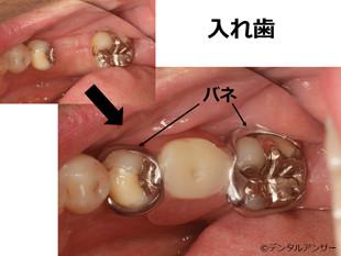 インプラントのメリット、デメリット(入れ歯との比較)