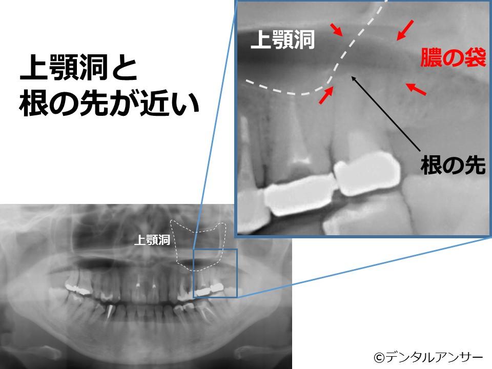 歯性上顎洞炎の実例
