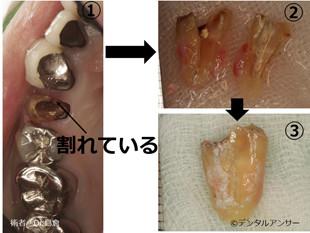 割れた歯を残す方法の実際(歯の再植)