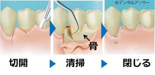 歯周外科手術(フラップ手術)の解説
