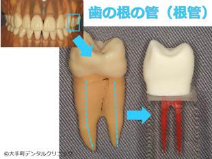歯の神経の治療、根管の説明画像