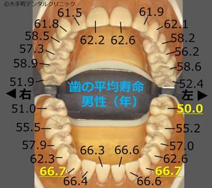 永久歯の平均寿命(日本人男性)