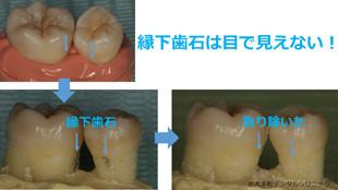 縁下歯石除去の治療前と治療後のイメージ画像