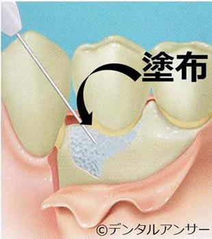 歯周組織再生療法、エムドゲイン