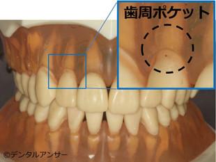 歯周ポケットの解説画像