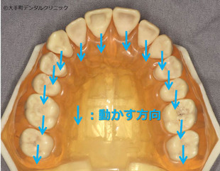 歯を抜かないで矯正する方法その3
