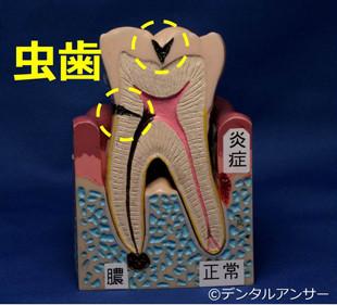 歯の痛みと虫歯の関係のイメージ