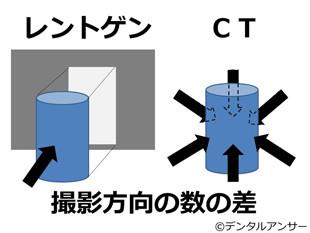 レントゲンとCTの違いをやさしく説明したイラスト