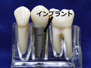 インプラントの見本奥歯