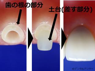 差し歯の解説画像