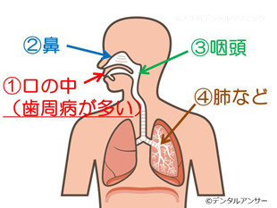 歯周病と口臭の関係のイメージの画像