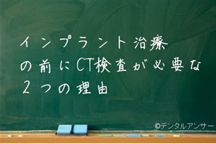 インプラントする時の歯医者の選び方(東京)