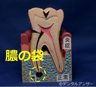 歯の痛みと膿の袋の関係のイメージ