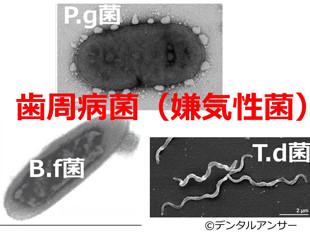 口臭の原因となる歯周病菌(嫌気性菌)の画像