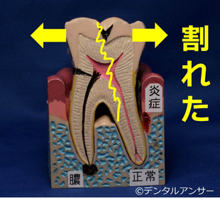 歯がグラつく原因(割れた、破折)