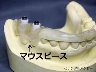 インプラントをする時の歯医者選びのポイント③マウスピースを使う