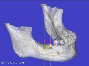 インプラントをする時の歯医者選びのポイント②CT撮影するクリニック