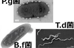 歯周病菌の画像