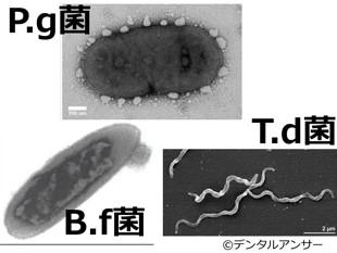 歯周病菌(pg菌td菌bf菌)