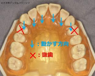 歯を抜いて矯正する方法の図