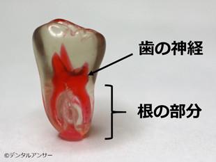 歯の構造解説写真(下の奥歯)