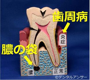 掌蹠膿疱症の原因となる歯の病気
