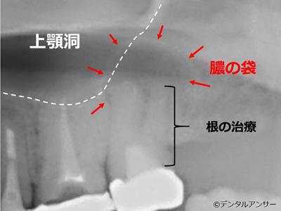歯性上顎洞炎の治療方針