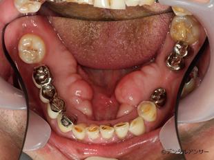 歯肉の盛り上がり(骨隆起)の画像