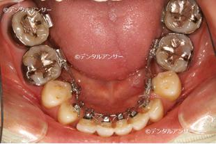 歯の裏からおこなう矯正(舌側矯正)の実際の例