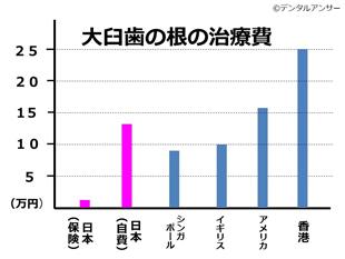 2019年先進国の歯の根の治療費比較グラフ(単位:円)
