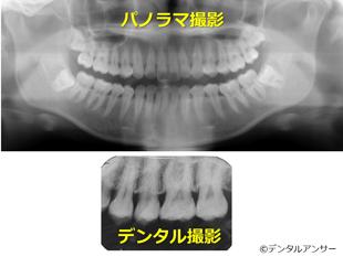 歯科で撮影する代表的なレントゲンの見本