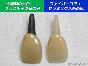 2つの典型的な差し歯の例