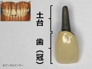 差し歯(前歯)の構造解説の図