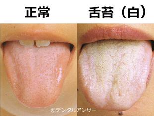 舌の正常と舌苔の比較画像